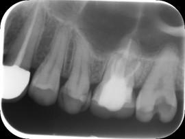 約2年後の術後X-ray写真