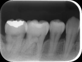 第二大臼歯