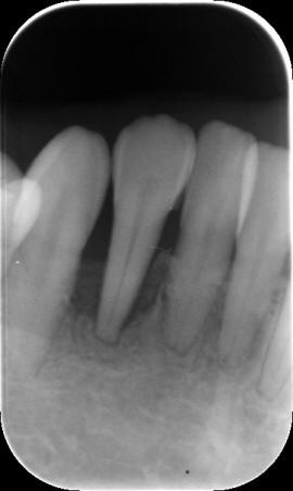 右下側切歯